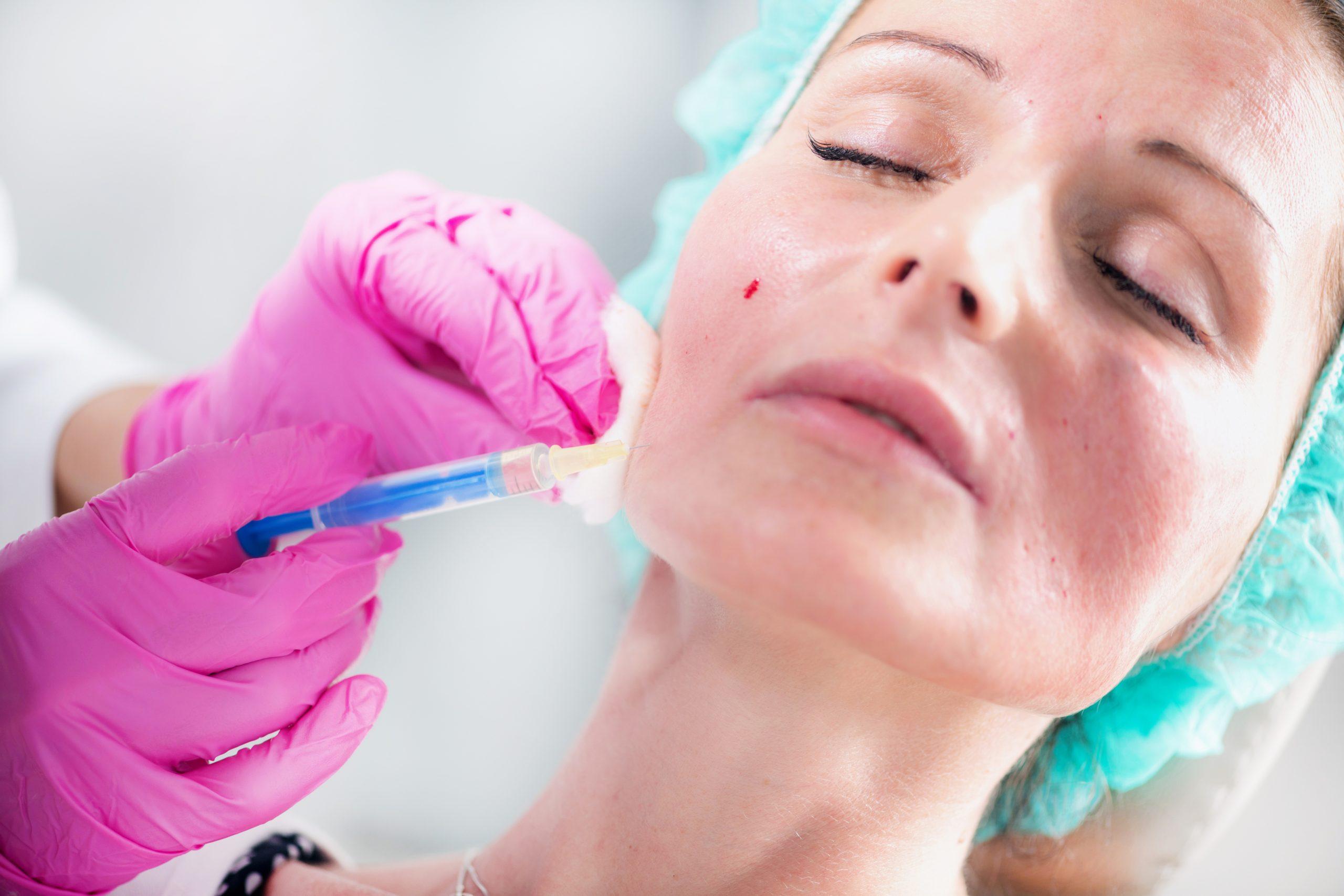 contraindicaciones peeling quimico